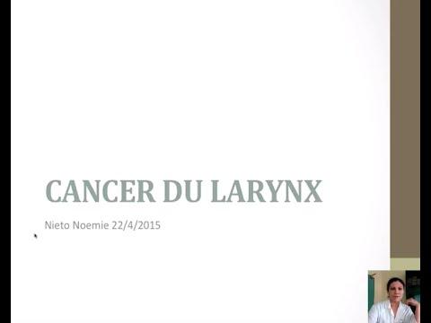 le cancer du larynx pharyngite mal de gorge