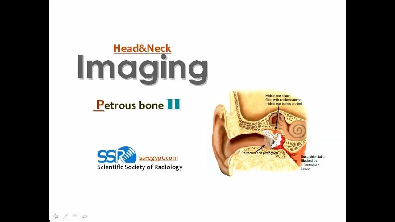 Imaging of Petrous bone II - Prof Dr. Mamdouh Mahfouz (In Arabic ...