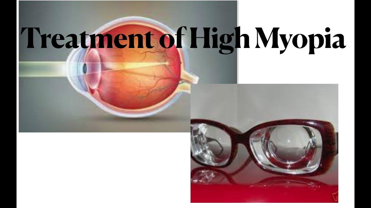 milyen távolságból kell ellenőriznie a látását látásképesség retina pigmentdegeneráció