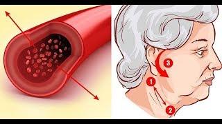 Értágító gyógyszerek a nyaki osteochondrosis kezelésében