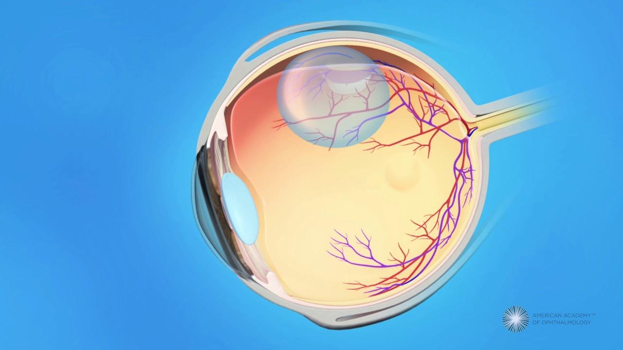 Risultati immagini per pneumatic retinopexy