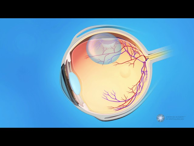 Pneumatic Retinopexy for Detached Retina