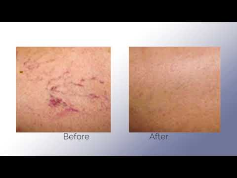 Spectrum Laser/IPL System - YouTube