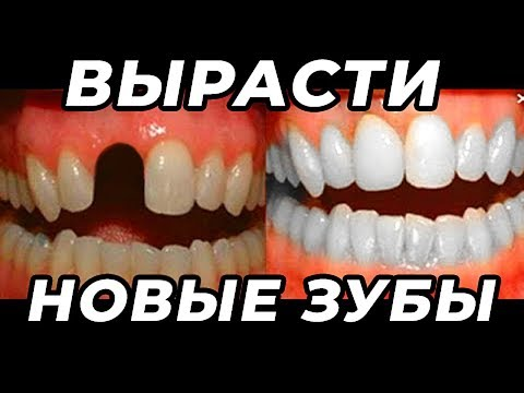 Как Вырастить Новые Зубы? Об Этом Не Расскажут Стоматологи