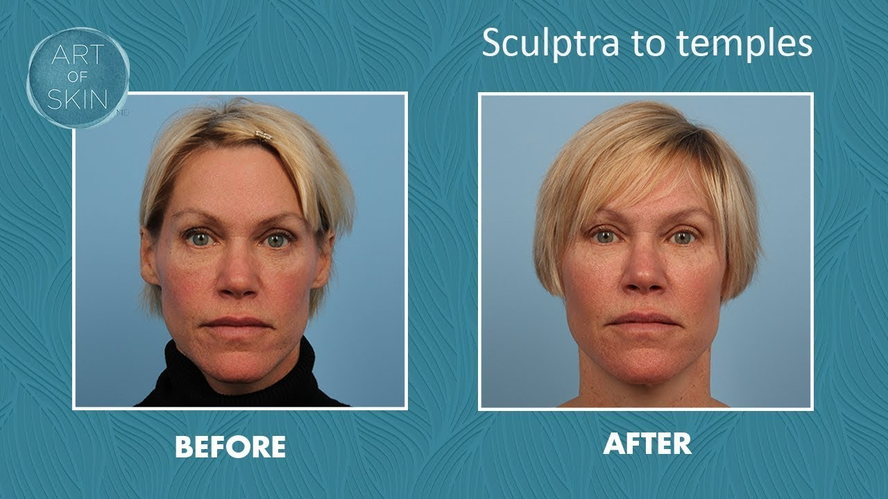 Sculptra injection to temples