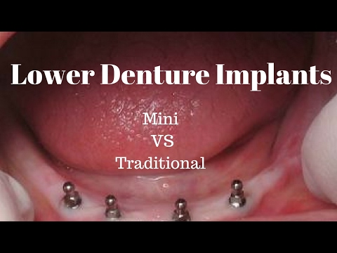 Lower Denture Implants:  Mini vs Traditional