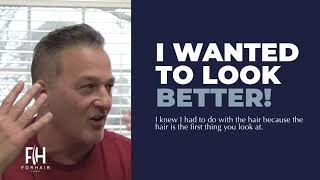 Hair Transplant Review - Forhair's Patient - February 2019