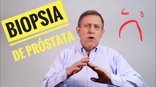 Vea cómo se hace la Biopsia de Próstata y comprenderá por qué puede matarlo