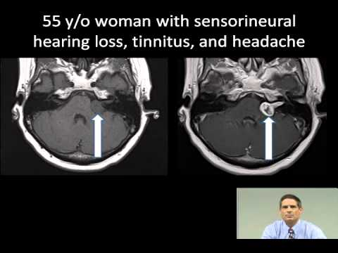Imaging of Cranial Nerves, Sinuses, and Neck Masses thumbnail