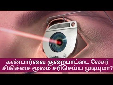 கண்பார்வை குறைபாட்டை லேசர் சிகிச்சை மூலம் சரிசெய்ய முடியுமா? - Laser Surgery For Eyes Tamil