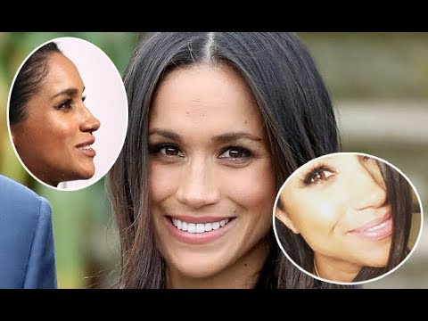 Meghan Markle effect sees more women requesting nose jobs