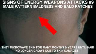 13 SIGNS OF ENERGY WEAPONS (targeted individuals)