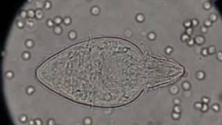 Húgyhólyagrák | Wofulo - Schistosomiasis és hólyagrák
