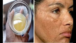 """Công thức """"Vàng"""" Trị tận gốc nám da và tàn nhang trong vòng 1 tuần nhờ dùng mật ong theo cách này"""