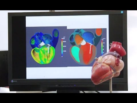 Developing multiscale, multiphysics simulator of the heart