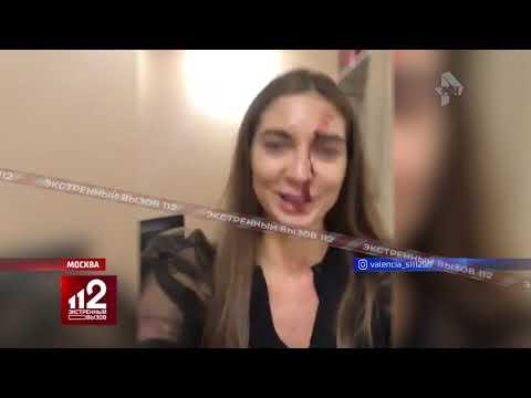 Инстаграм-блогера жестоко избил косметолог | Видео