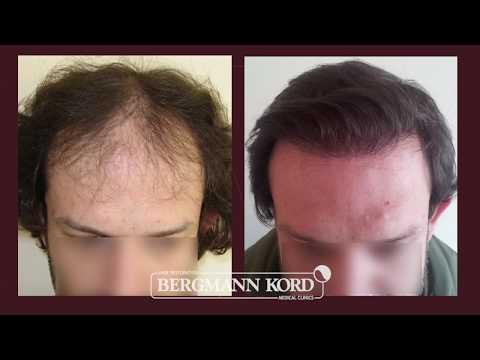 Hair Transplantation by Bergmann Kord  – Results – 002