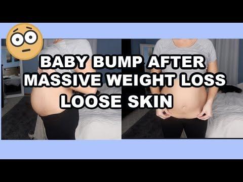 PREGNANCY UPDATE |30 WEEK BABY BUMP AFTER MASSIVE WEIGHT LOSS | LOOSE SKIN | FELICIA KEATHLEY