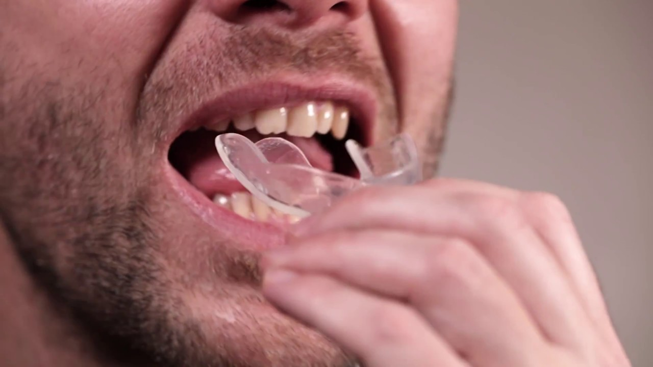 How To Mold Teeth Whitening Trays At Home Youtube