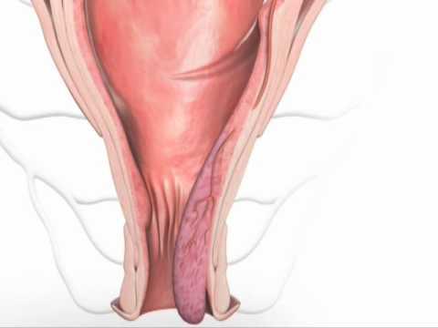 oporavak nakon operacije foro sobre la próstata