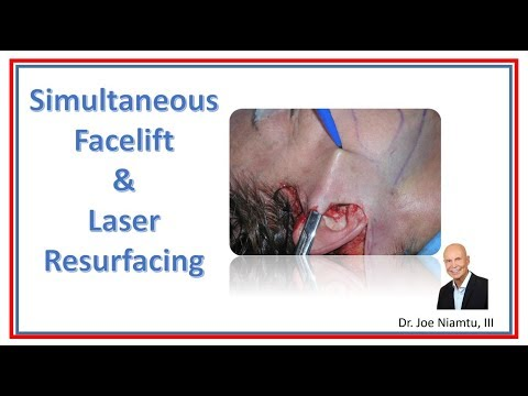 Simultaneous CO2 Laser with Facelift by Dr. Joe Niamtu, III for Cosmetic Surgery Times Magazine