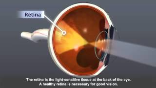 Know more about Diabetic Retinopathy -  Eye Exams and Blindness