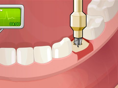 OPERATE NOW : DENTAL SURGERY | Dental Surgery Game