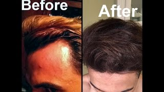 Grow Hair on Receding Hairline Naturally! (dermaroller and essential oils)