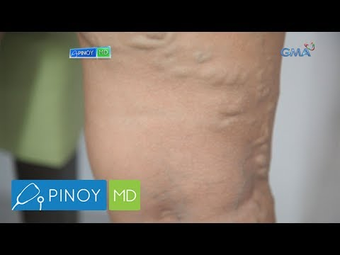 Tiyan na Masakit at Makulo: Anong Lunas - ni Dr Willie Ong #163 from YouTube · Duration:  2 minutes 47 seconds