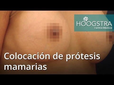 Colocación de prótesis mamarias (16072)