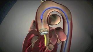 Transkatheter-Aortenklappen-Implantation (TAVI)