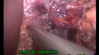 Lap mixed Hiatal Hernia Repair with Toupet's fundoplication : Dr Emad T SALİH
