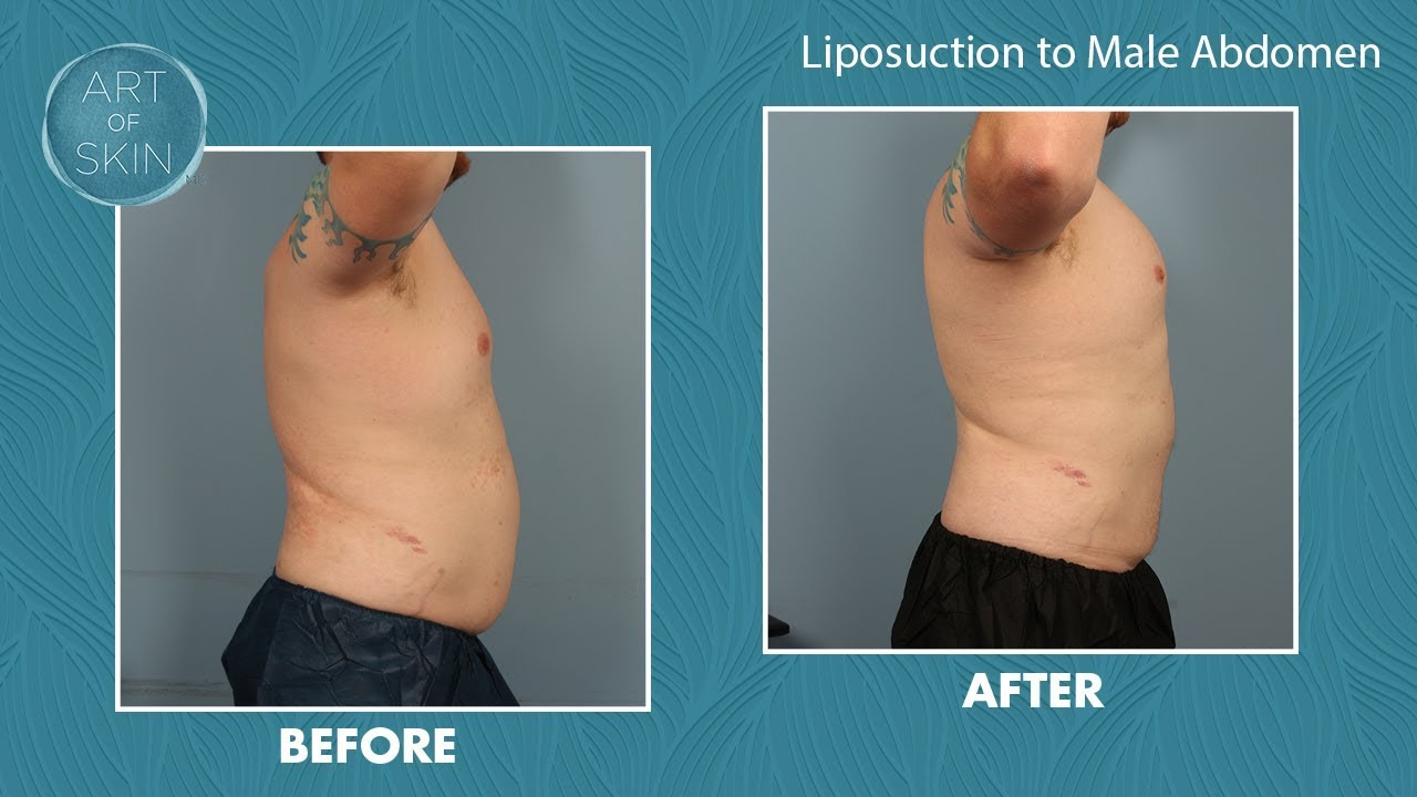 Liposuction Male Abdomen San Diego Youtube