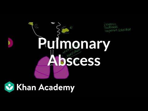 Pulmonary Abscess   Respiratory System Diseases   NCLEX-RN   Khan Academy