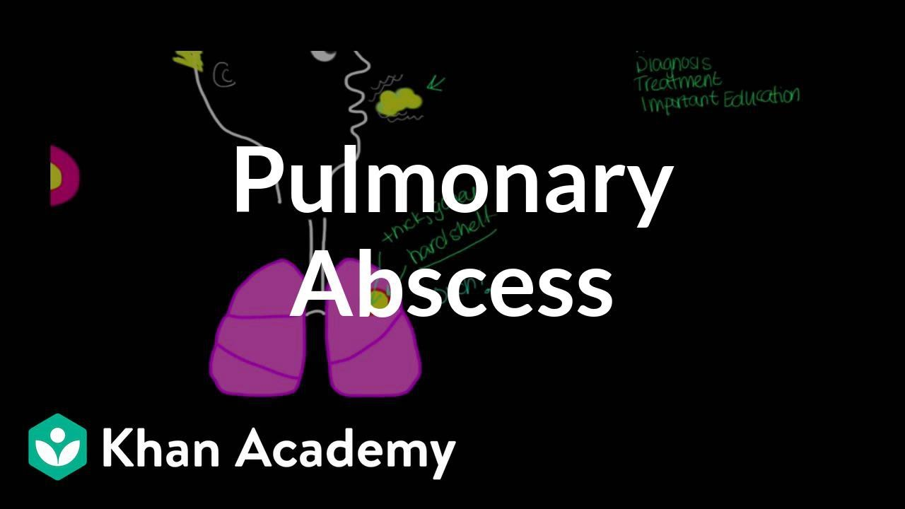 Pulmonary abscess (video) | Pneumonia | Khan Academy