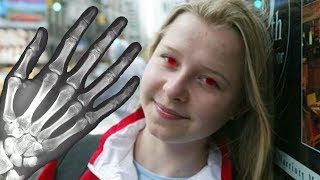 Das Mädchen mit dem Röntgenblick (REALE SUPERKRAFT)   MythenAkte