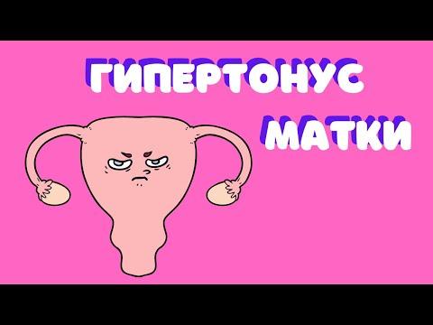 """О """"гипертонусе"""" матки -Др. Елена Березовская -"""