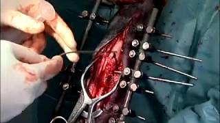 Comminuted Fracture Repair
