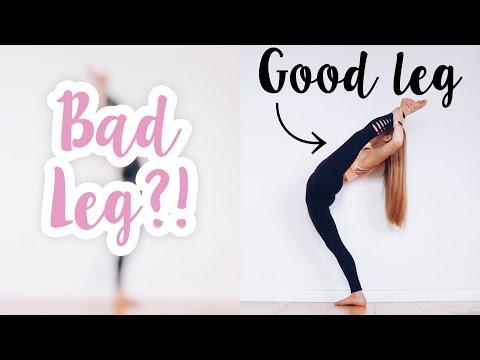 Good Leg VS Bad Leg Flexibility Challenge!