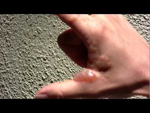 Poison Ivy Allergic Reaction ★ Rash & Blisters draining- Poodle-dog Bush (Common turricula) ♦