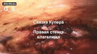 видео Несколько фактов об уретрите у женщин
