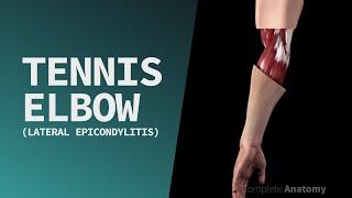 KT Tape: Tennis Elbow.