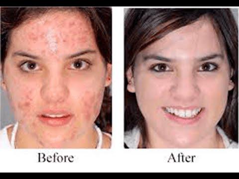 6 Benefits Of 3d Led Mask Anti Aging Secrets Revealed