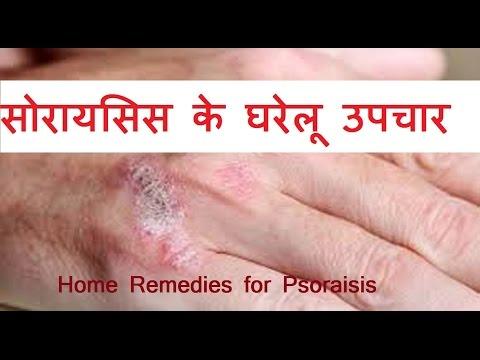 सोरायसिस के घरेलू उपचार और नुस्खे | Home remedies for  Psoriasis