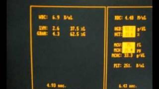 Guangcailun Elevaci/ón de tensi/ón Actual 2A M/ódulo M/ódulo DC-DC Fuente de alimentaci/ón Ajustable convertidor regulador de reforzar la protecci/ón de sobrecalentamiento