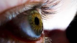 Что делать, если что то попало в глаз под верхнее веко, под нижнее веко и не выходит?