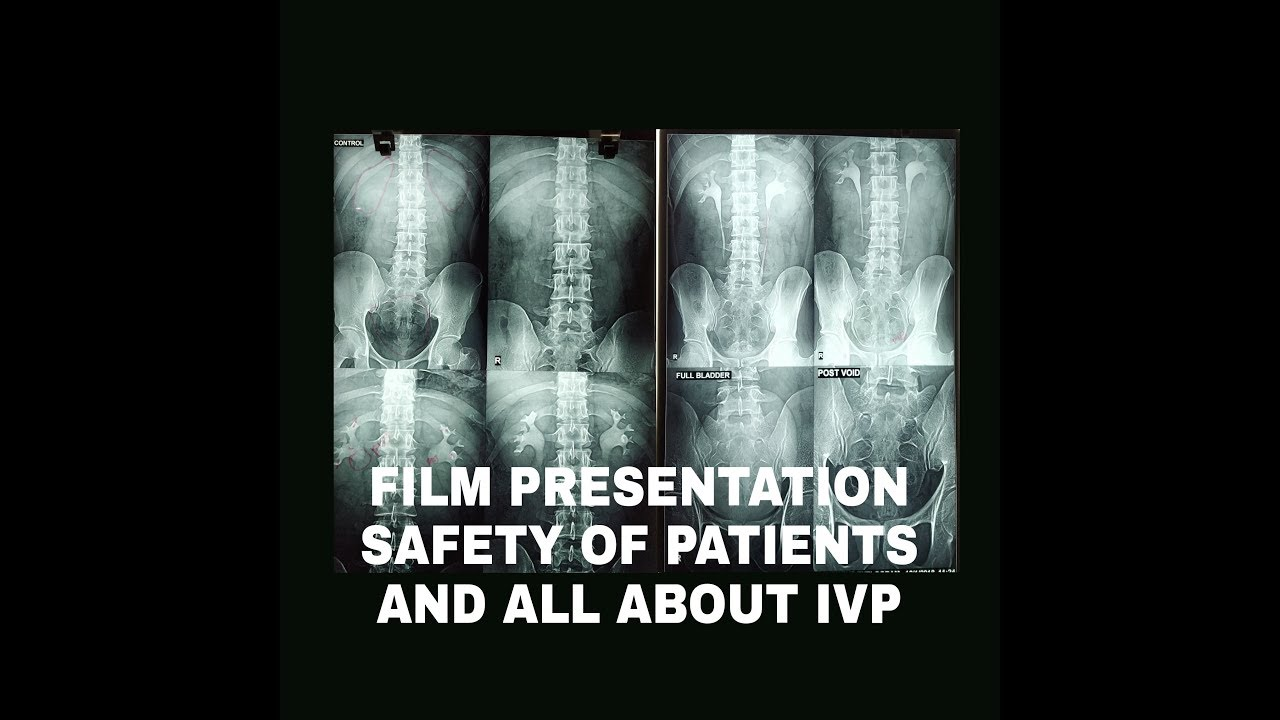 IVP FILM PRESENTATION, SAFETY PRECAUTION OF PATIENTS AND MORE #MedicalRadiology