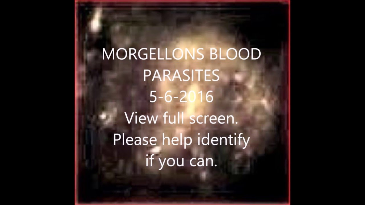 MORGELLONS BLOOD PARASITES LIVING IN BLOOD SAMPLE