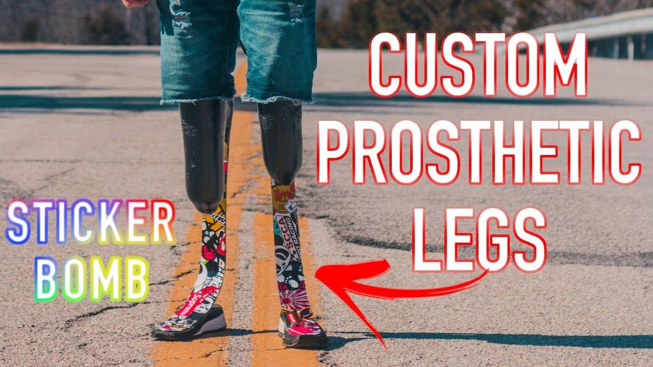 Custom Prosthetic Leg - STICKER BOMB! (DESTROYED)