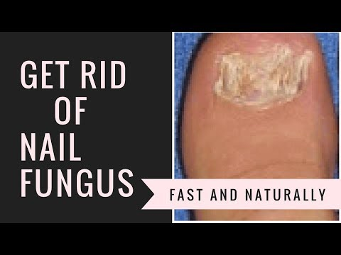 the-easiest-way-to-treat-toenail-fungus-fast-and-naturally!-for-good!